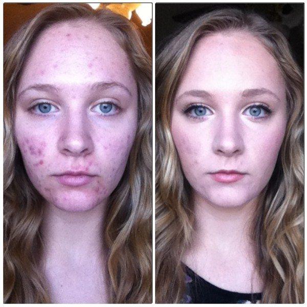 fotos-de-cicatrices-de-acne-antes-y-despues-gracias-al-maquillaje