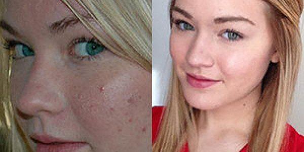 fotos-de-cicatrices-de-acne-antes-y-despues-transformacion