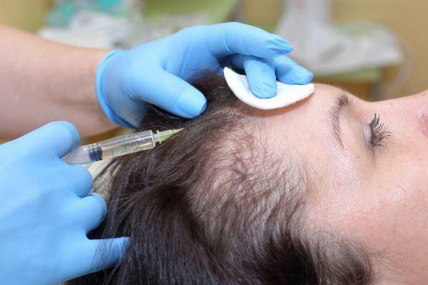la-alopecia-en-mujeres-mujer-tratamiento