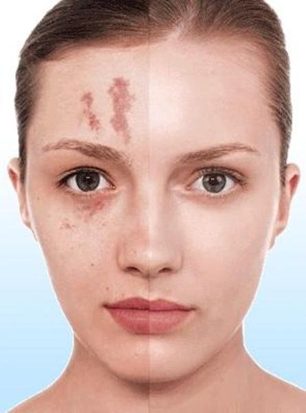 Maquillaje para disimular cicatrices.