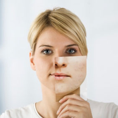 Maquillaje para disimular cicatrices