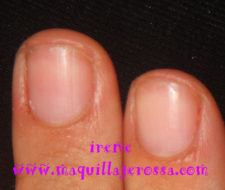 Kit Mavala para uñas abiertas y descamadas