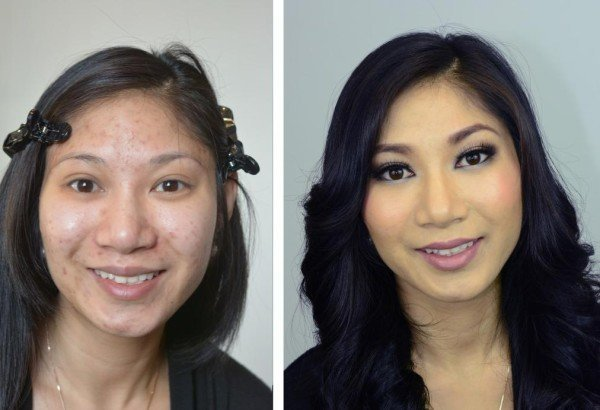 fotos-de-cicatrices-de-acne-antes-y-despues-con-base-de-maquillaje