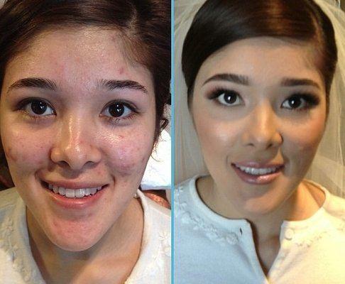 fotos-de-cicatrices-de-acne-antes-y-despues-con-un-buen-corrector