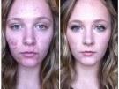 Fotos de cicatrices de acné antes y después