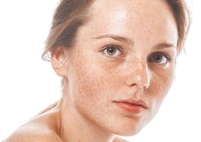 De las manchas de pigmento sobre la persona sobre el labio
