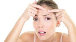 Cómo maquillar el acné juvenil