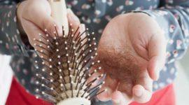 Alopecia en mujeres: por qué se produce, tipos y tratamientos