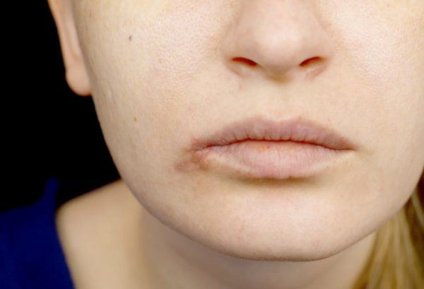 Maquillaje con herpes labial