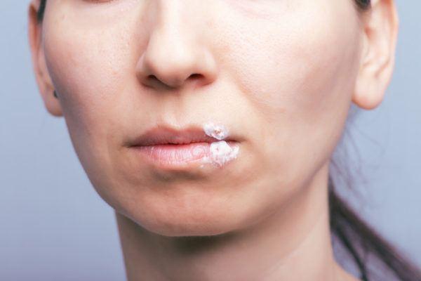 Tratamiento útil con herpes labial