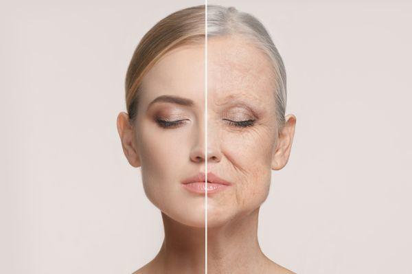 remedios-caseros-para-tratar-arrugas-istock
